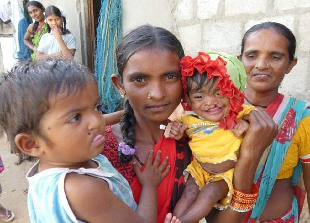 Kids_suffering_from_Cleft