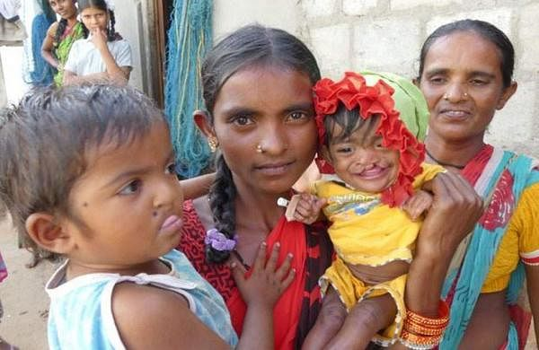 A few children with cleft lips before the operation