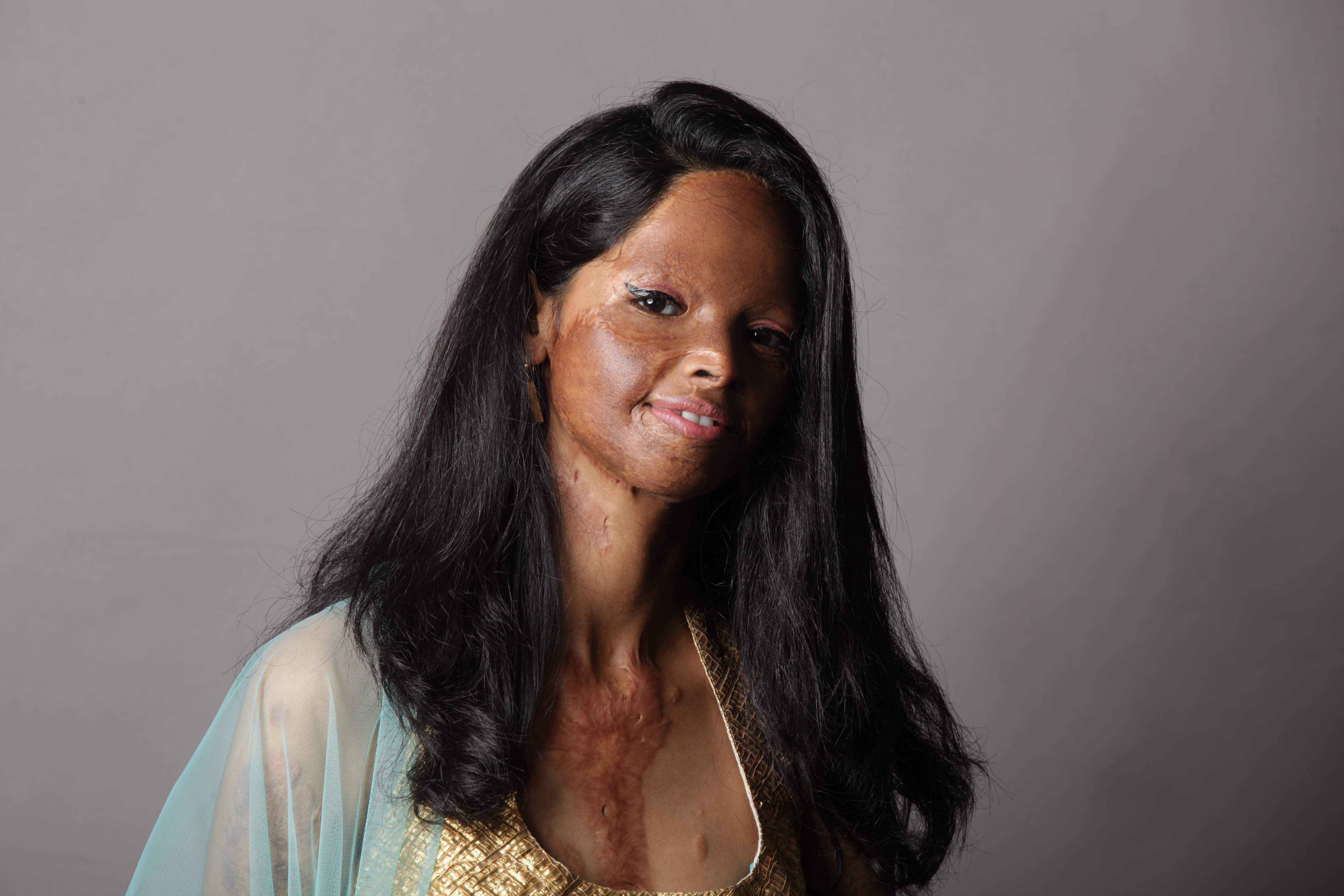 Have we matured as a society to accept acid attack survivors