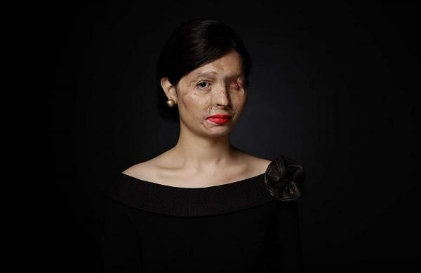 Reshma Qureshi (Pic: Make Love Not Scars)