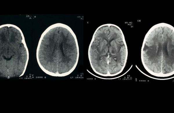Encephalitis-copy