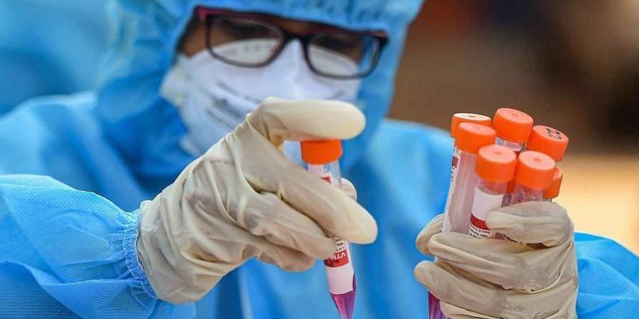 coronavirus_PTI_2