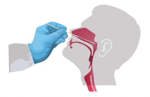 nasal-swab